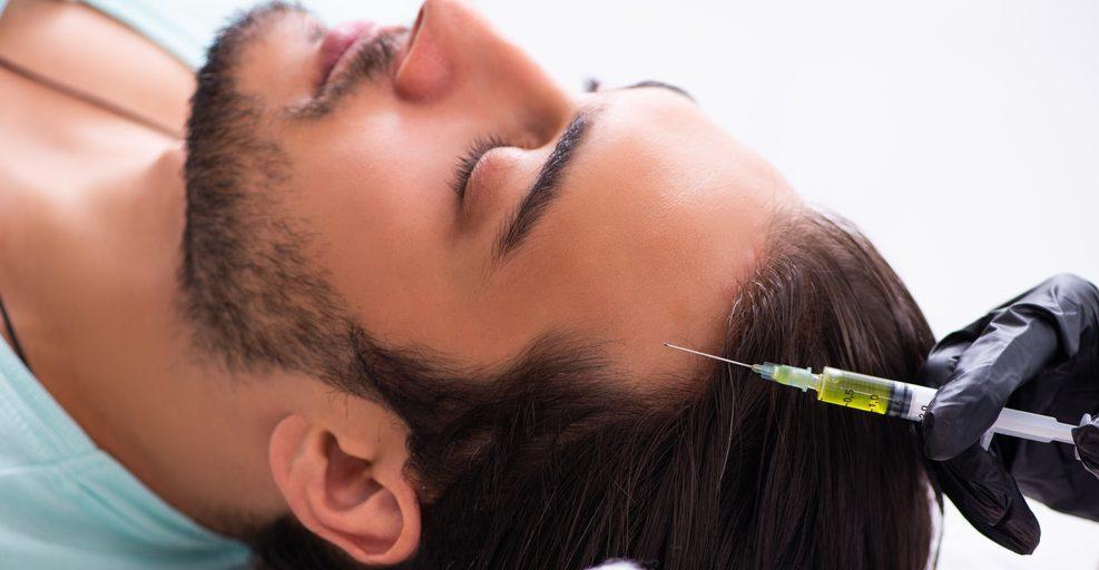 שיקום שיער גברים
