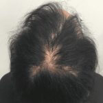 נשירת שיער נשים - לפני טיפול