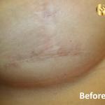 לפני טיפול בצלקת ניתוח