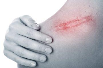 חושב לטשטש את הצלקת שלך? 10 דברים שכדאי לך לדעת לפני תחילת הטיפול בצלקת?
