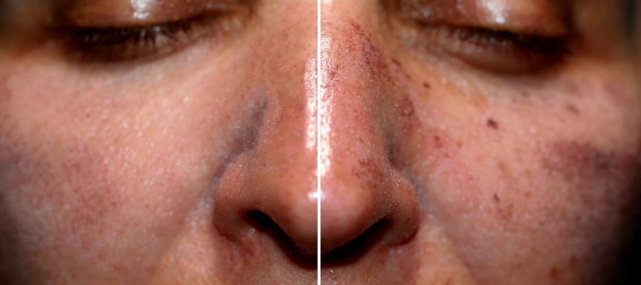 One half of the face in pigmentation and brown spots, the other side of the face after laser polishing and peeling.
