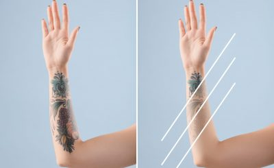 Young woman before and after laser tattoo removal procedure on color background, closeup