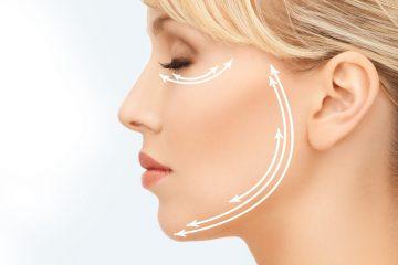 מתיחת פנים, צוואר וקו לסת ללא ניתוח