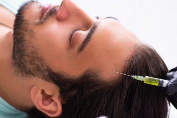 כמה עולה טיפול פלזמה תרפיה לשיער?
