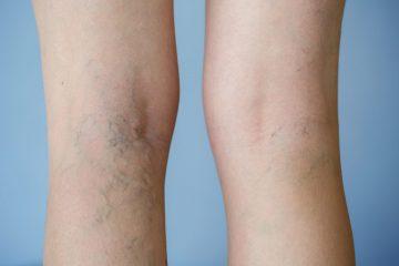 כיצד נוצרות דליות ברגליים? ואיך ניתן לטפל בהן