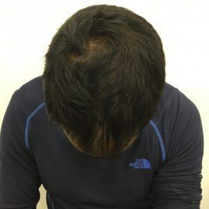 התקרחות קודקוד גברים - אחרי טיפול אחד