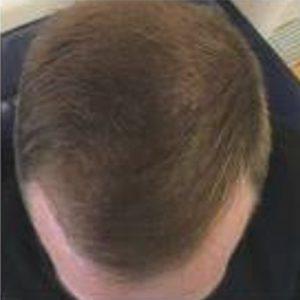 נשירת שיער גברים - אחרי טיפול