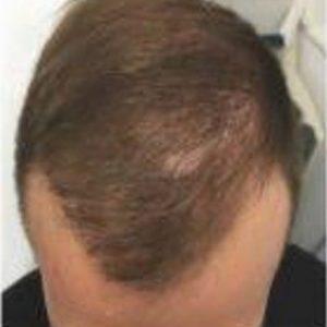 נשירת שיער גברים - לפני טיפול