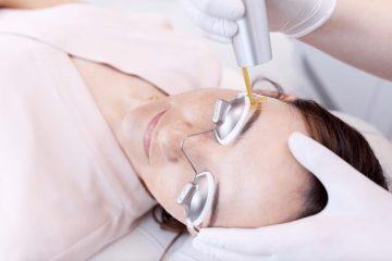 טיפול בלייזר באיפור קבוע – כמה עולה