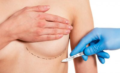 Beautiful woman covering her breast with sketches, surgeon in medical gloves is holding a scalpel, isolated on a white background, cropped